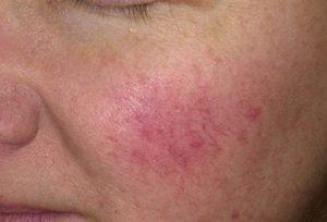 Что такое розацеа. Использование косметики при розацеа. Розацеа - это хроническое воспалительное заболевание дермы, которое характерно для людей в возрасте от 30 до 50 лет.