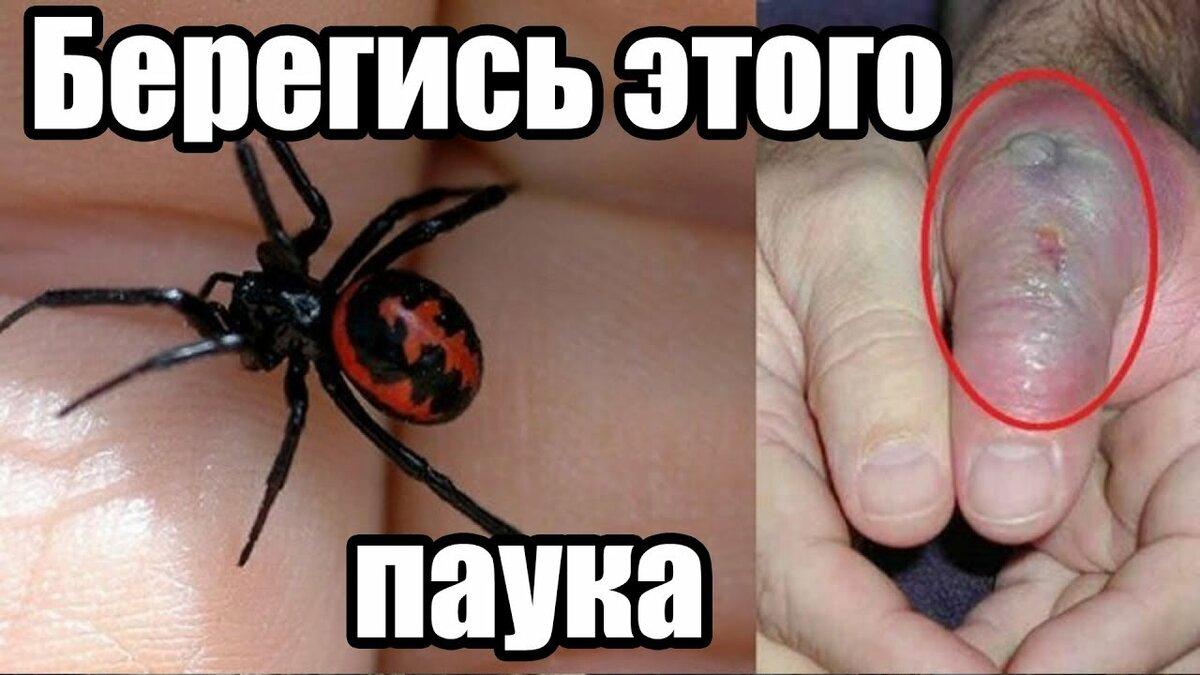 картинки укус самого ядовитого паука