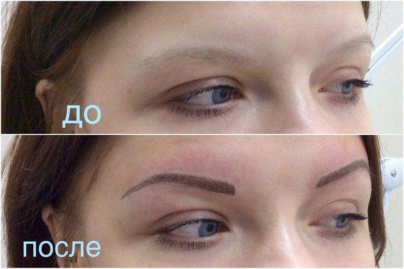 Перманентный макияж (татуаж). Показания. Противопоказания 43