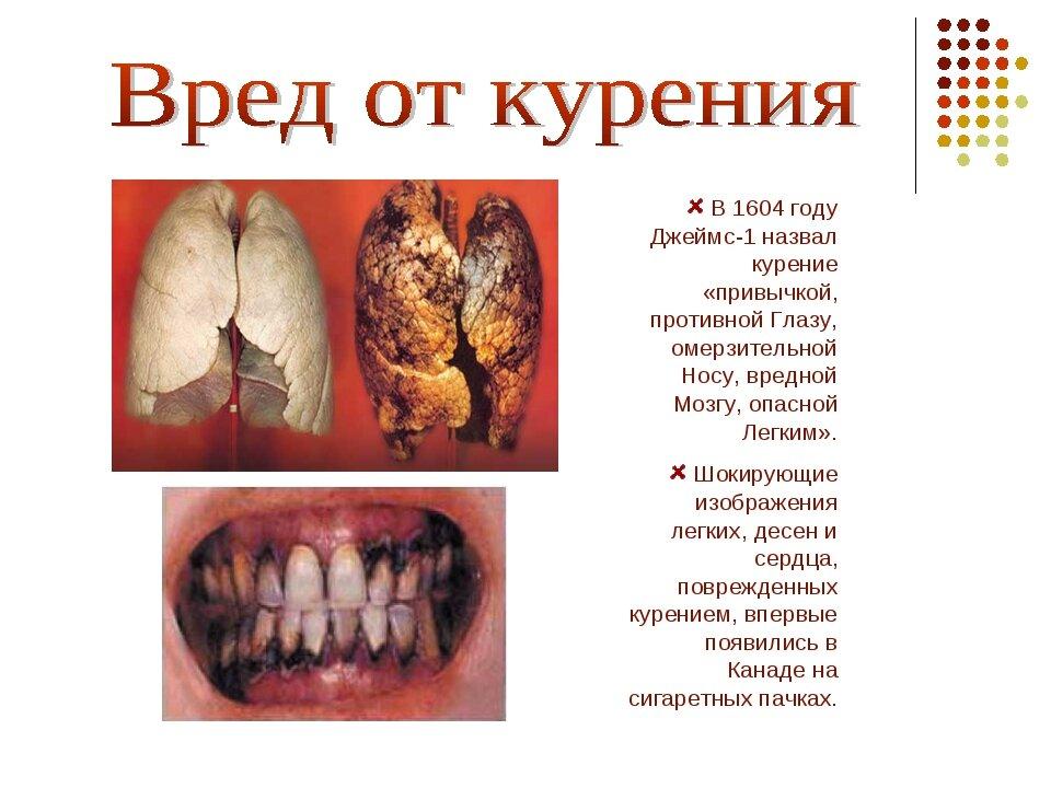 Вред курения в картинках дети