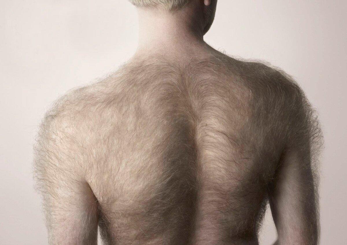Картинка волосы на теле