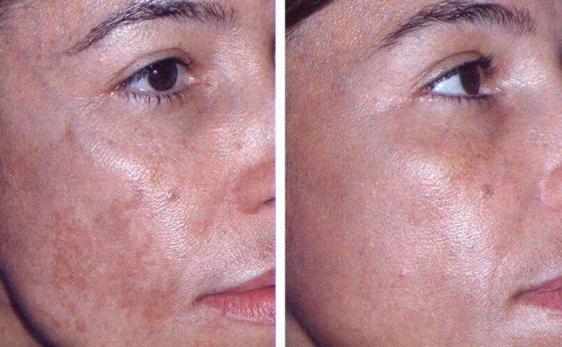 отзывы фотоомоложение кожи лица в минске себя