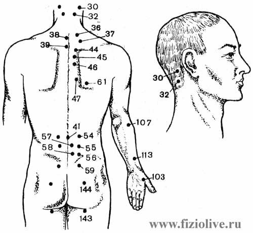 Точки при остеохондрозе шейно грудном остеохондрозе