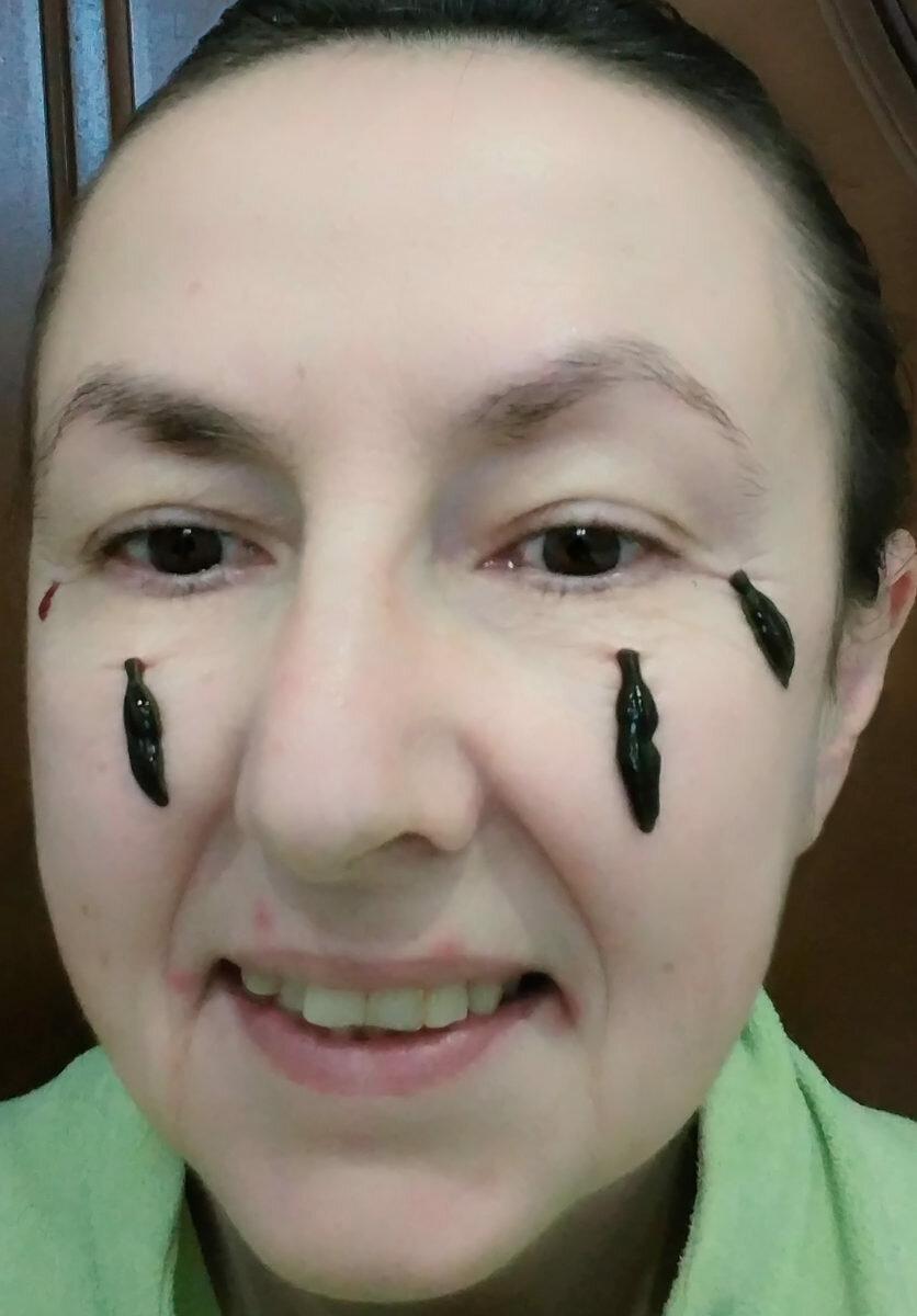 картинка гирудотерапия в косметологии расстается париком днем