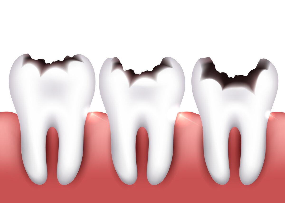 Зубы кариозные картинки