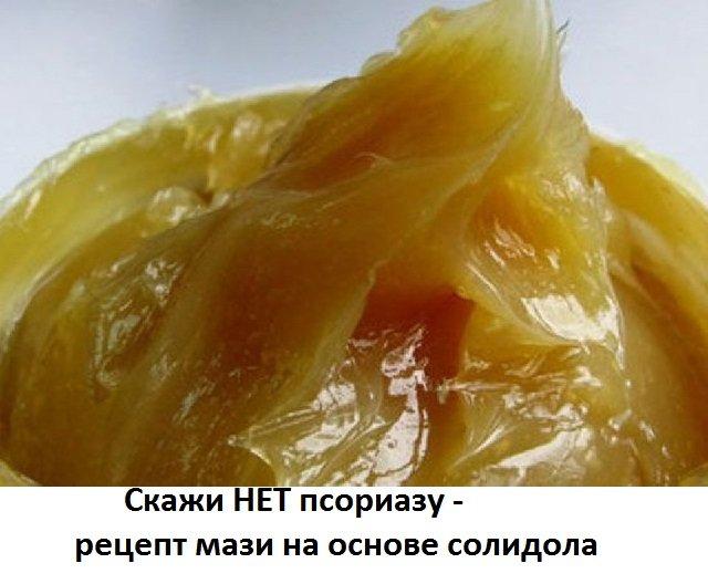 Действие мази на основе солидола от псориаза. Рецепты ...