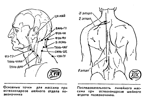 Народные средства от остеохондроза