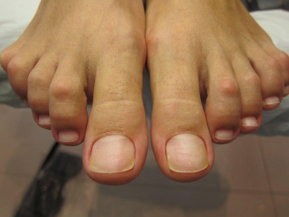 них фото нога без ногтей внешнему виду принципе