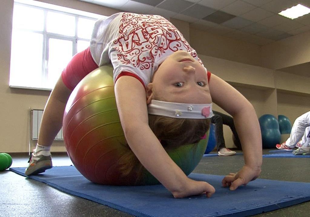 Сколиоз у детей художественная гимнастика