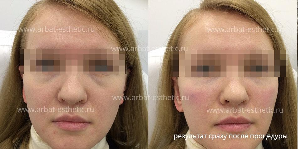 Методы борьбы с отеками после биоревитализации глаз.