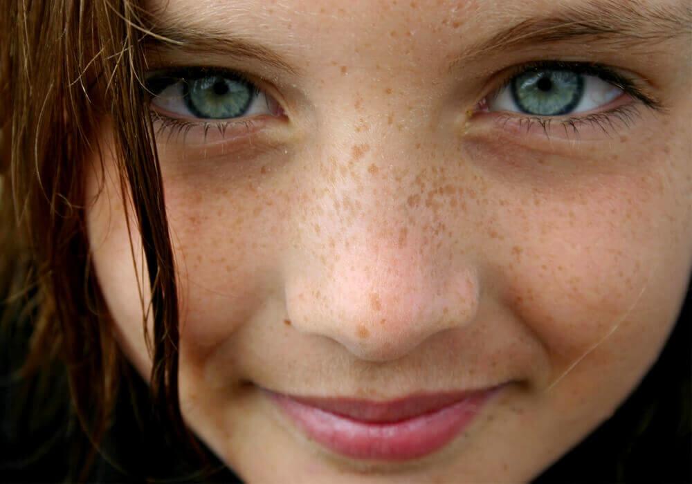 Freckle facial 12