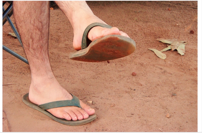 v-shlepantsah-nogi-gryaznie