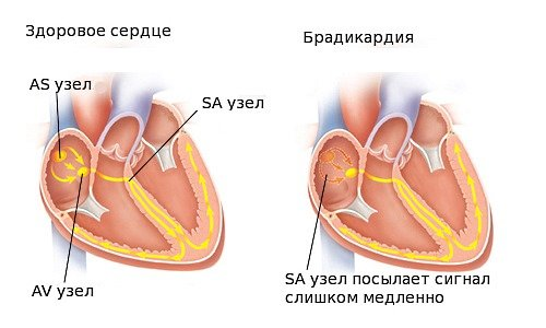 Препараты при брадикардии и повышенном давлении - Всё о сердце ...