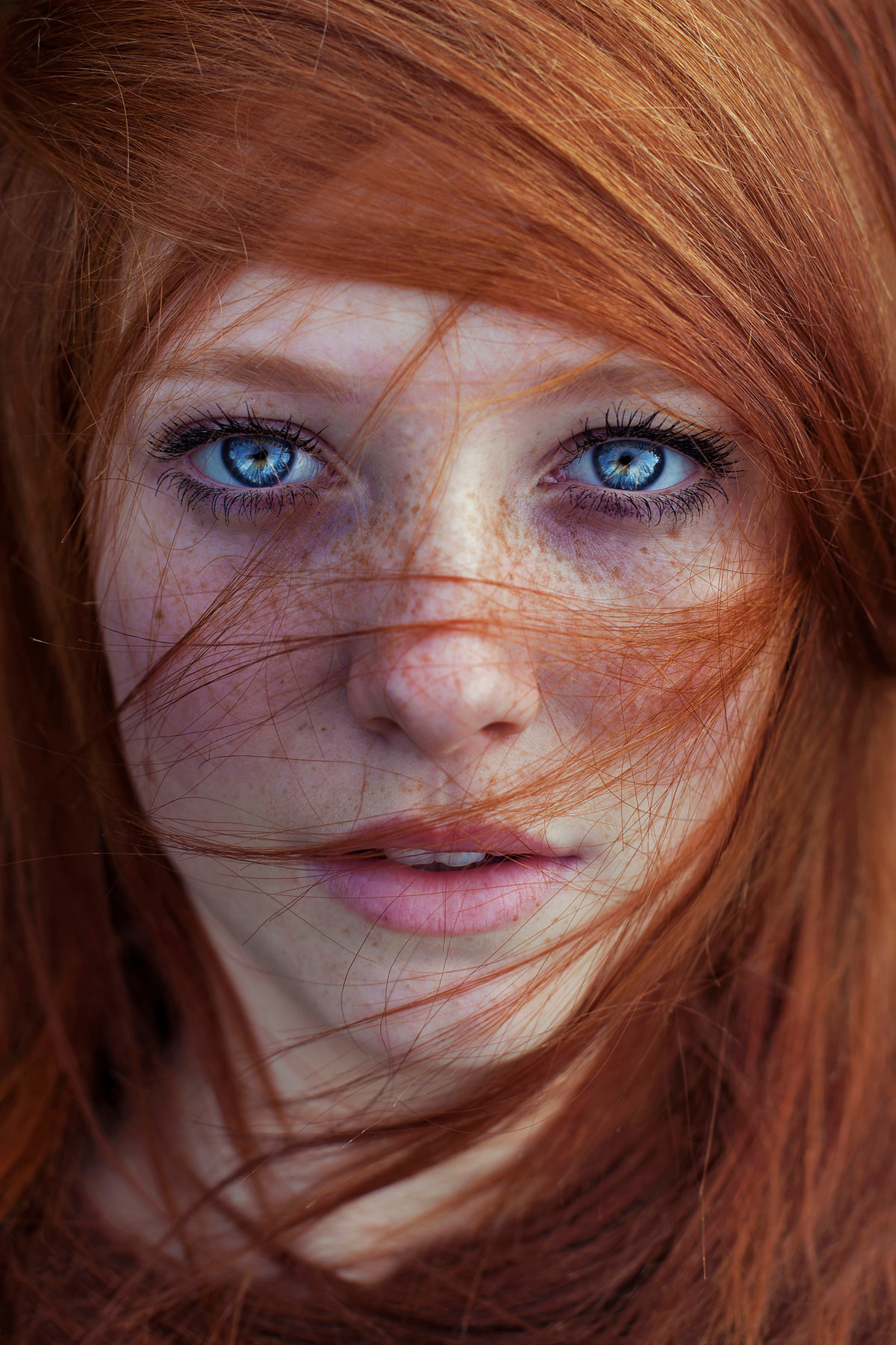 Leukoderma pictures of face redhead orgasm teen