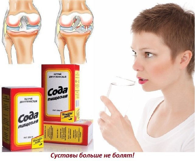 Лечить суставы содой боль в тазобедренном суставе народные средства