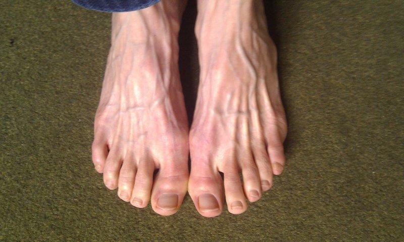 здоровые пальцы ног фото