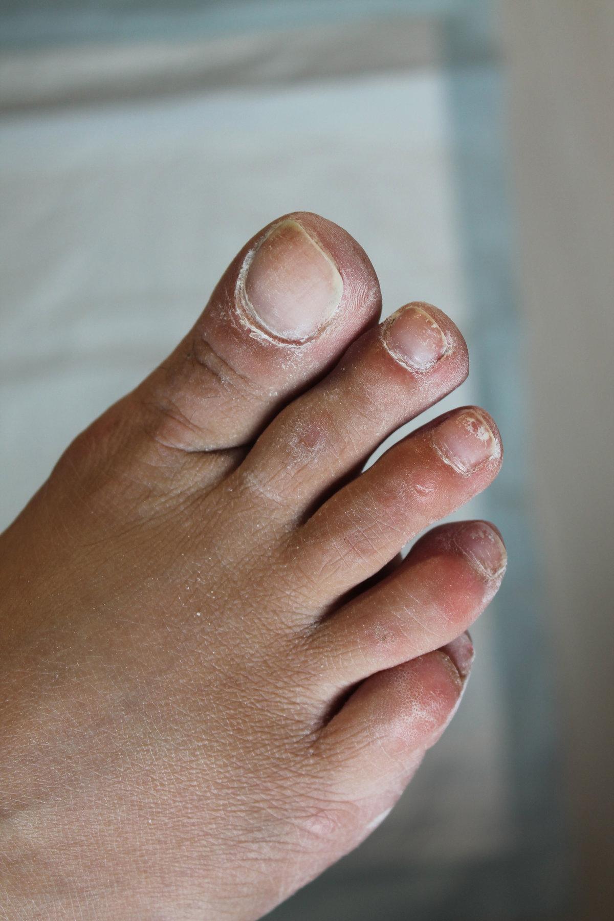 фото нога без ногтей