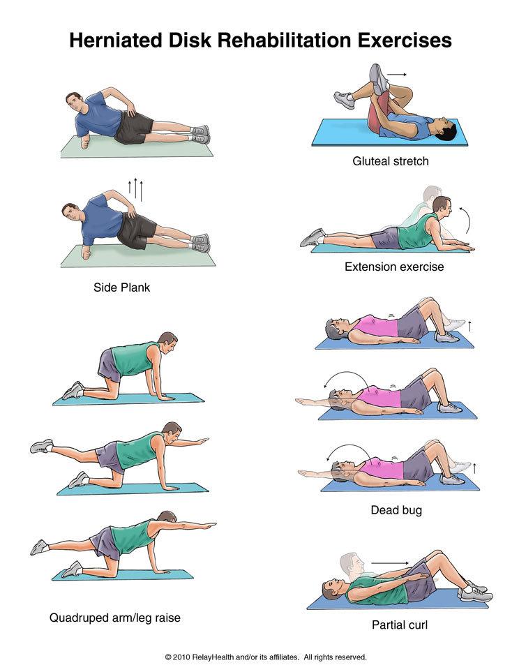 Лечебная гимнастика при вывихе тазобедренного сустава.