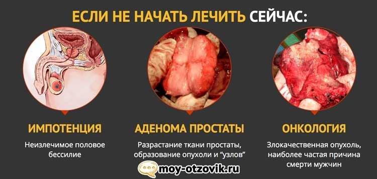 palchikoviy-massazh-prostati-u-muzhchin-video