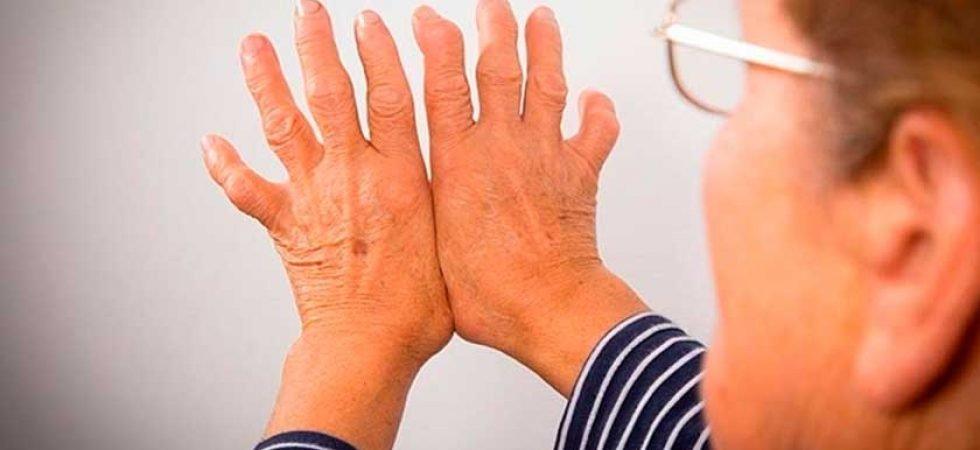 Клиники лечения суставов лечение суставов после аллергии