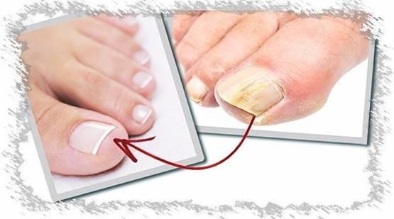 Заразиться грибком через лак для ногтей