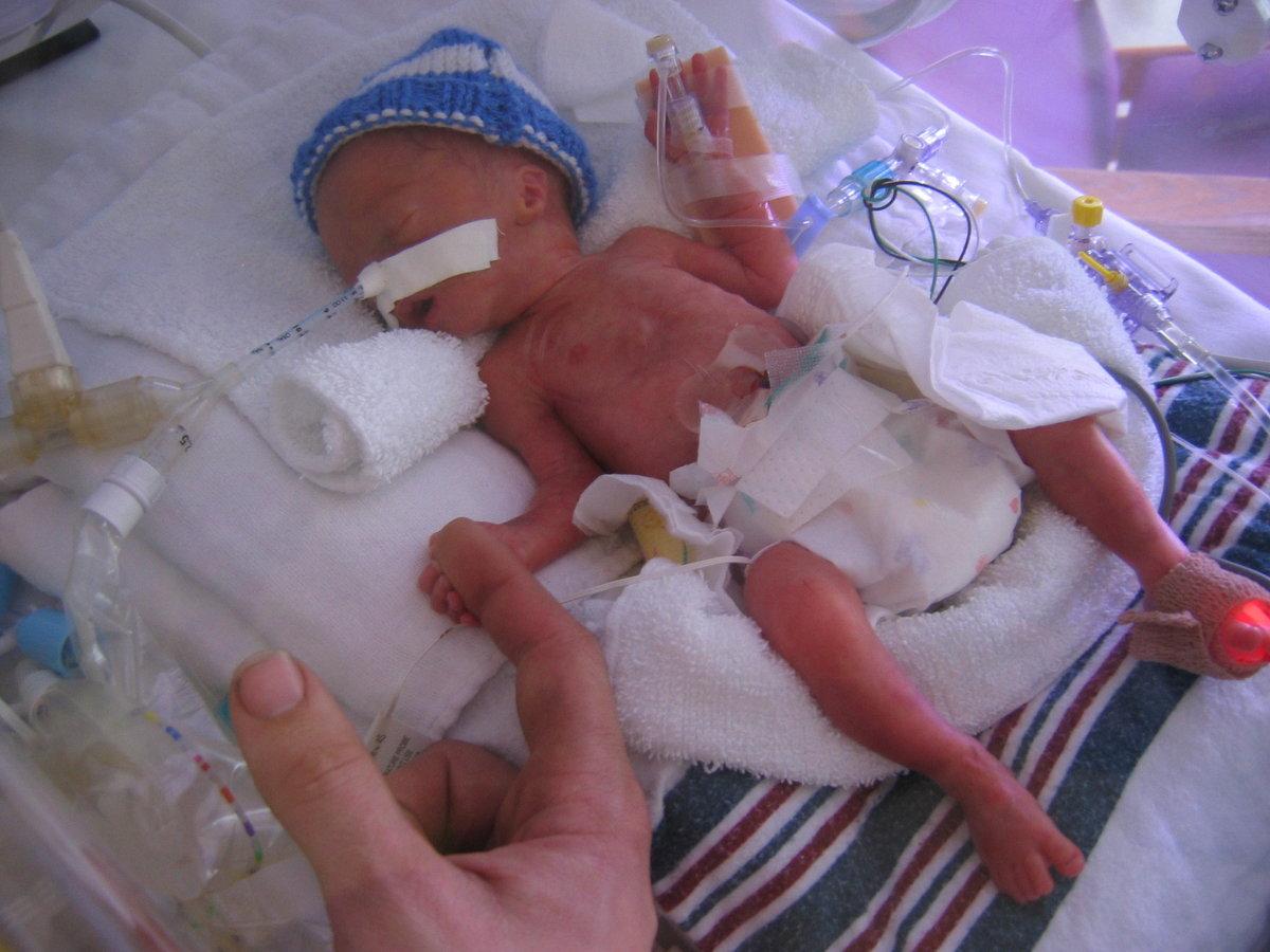 Для таких детей характерен вес менее 1 килограмма, цвет кожи красно-фиолетовый.