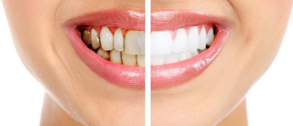 как отбелить зубы за неделю в домашних