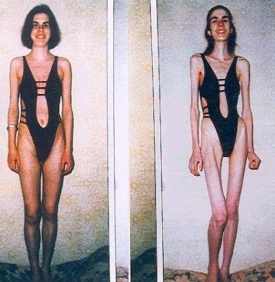 Может ли человек худеть от нервов фото