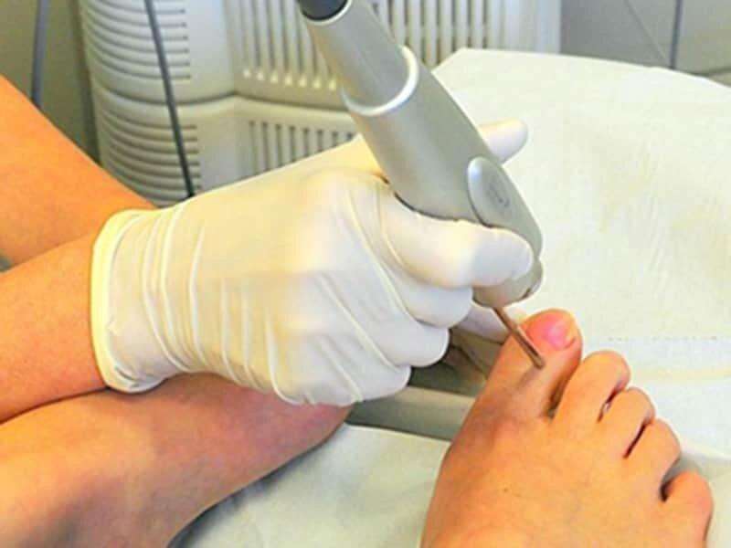 лечение вросшего ногтя лазером комнату адресу Закамская