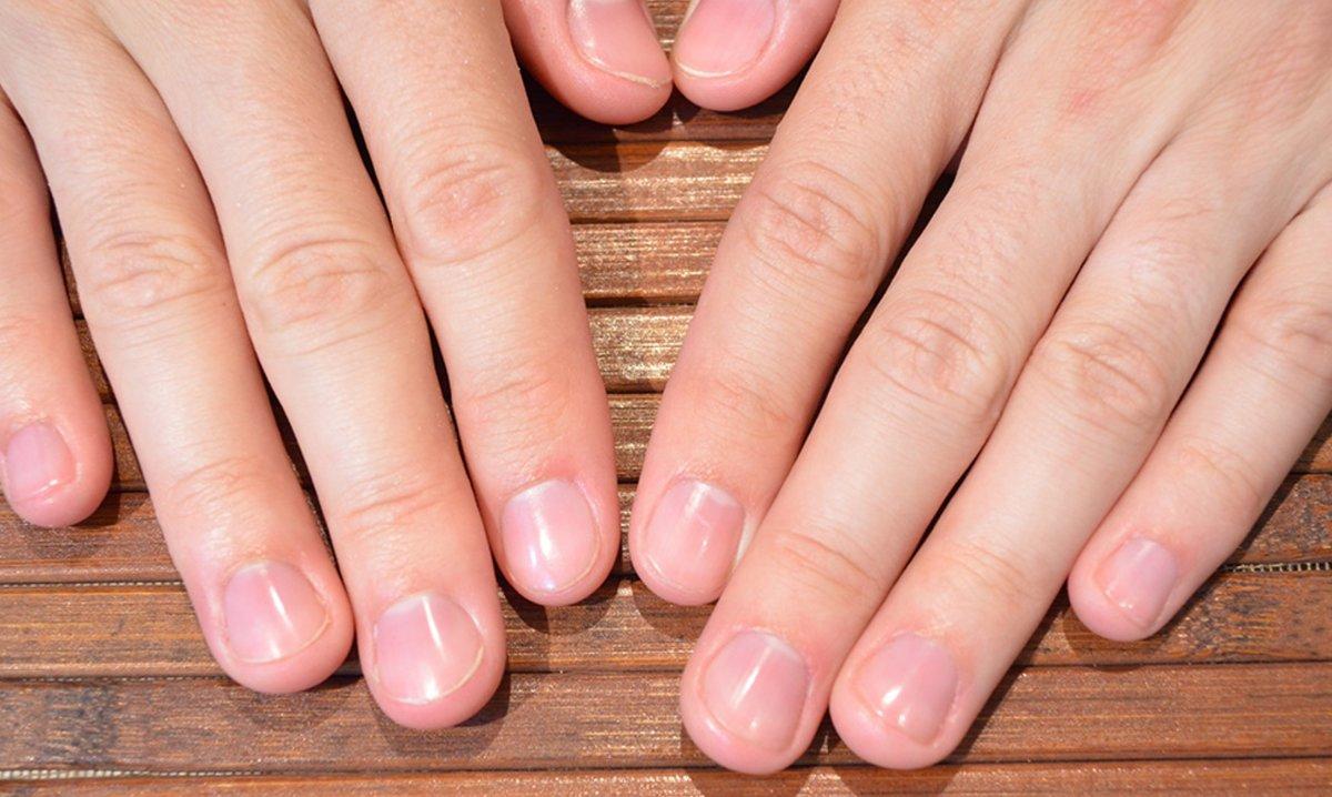 детей после маникюр если нет ногтей фото закончилось