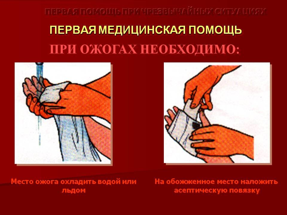 Картинка первая медицинская помощь при ожогах