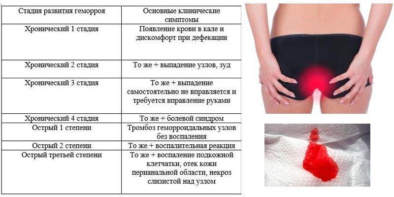 Геморой Симптоми