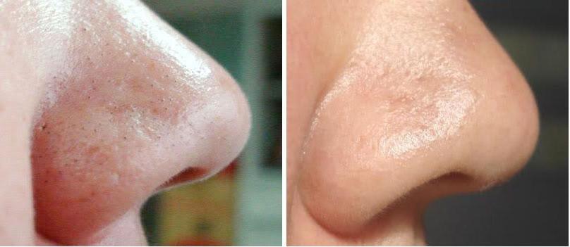 Как очистить поры лица от черных точек фото