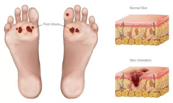Уход за ногами при сахарном диабете https://bit.ly/2DPzgdB Какой ...