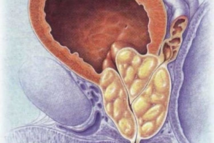 Может быть диарея от простатита
