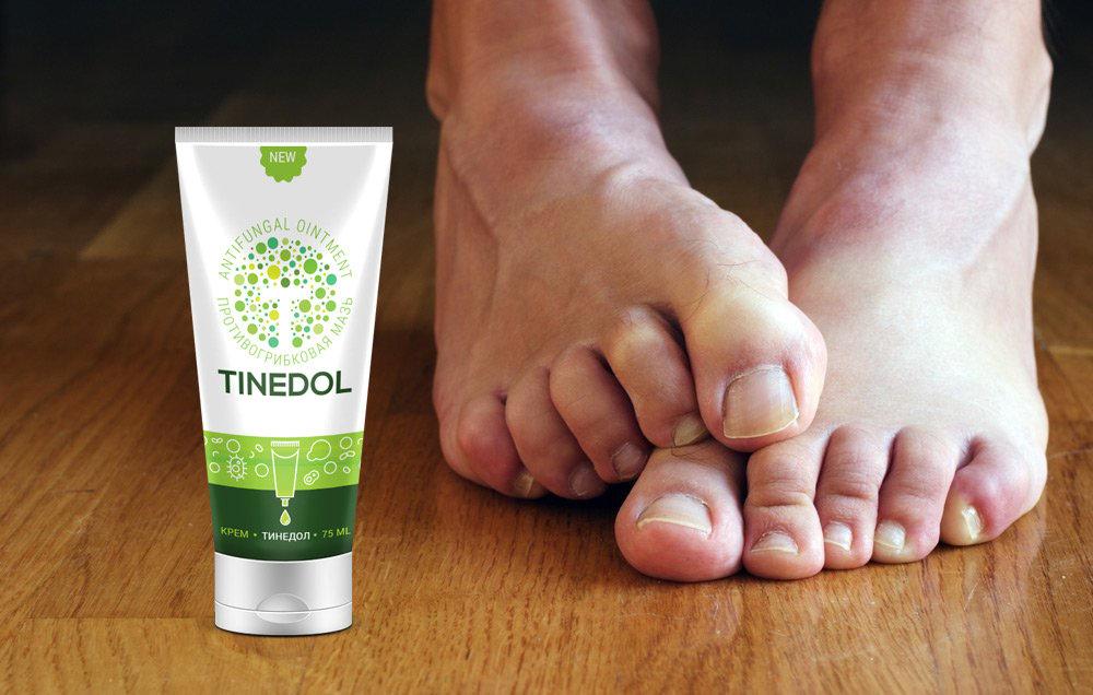 Аналог тинедол крем от грибка на ногах