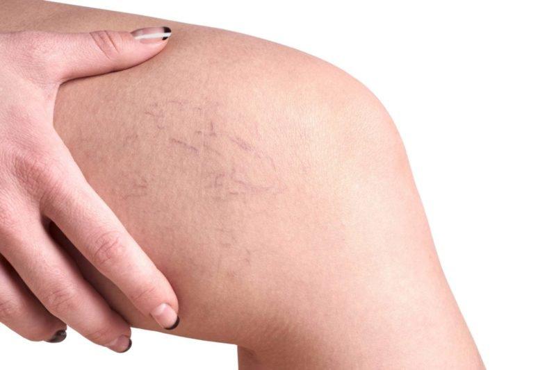 Варикозное расширение вен на ногах: симптомы и лечение, Домашнее ...