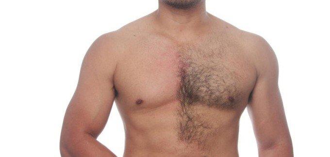 Чисто технически удаление нежелательных волос с кожи тела у мужчин и у женщин ничем не отличается.