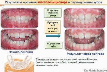 18 карточек в коллекции «Капы Для Выравнивания Зубов — Невидимый Помощник»  пользователя КАПА DENTAL TRAINER ДЛЯ ВЫРАВНИВАНИЯ ЗУБОВ в Яндекс.Коллекциях d5eaab9c52c