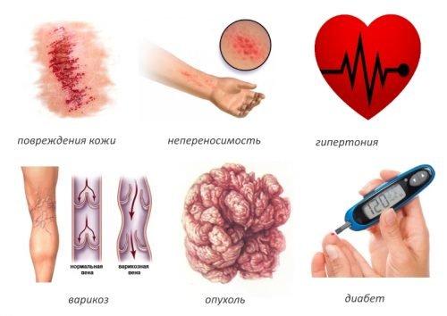 Где лечить суставы минск как обезболить суставную боль