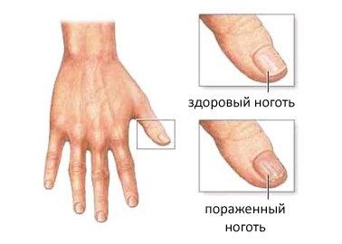 Грибок ногтей на руках фото и чем лечить в домашних условиях