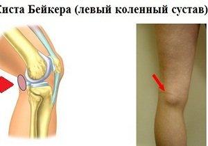 Киста бейкера коленного сустава симптомы хибер крем для суставов