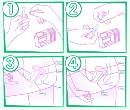 Клотримазол мазь для мужчин: инструкция по применению, цена.