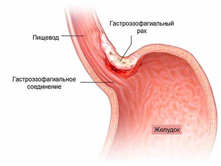 Гастроэзофагеальный рак