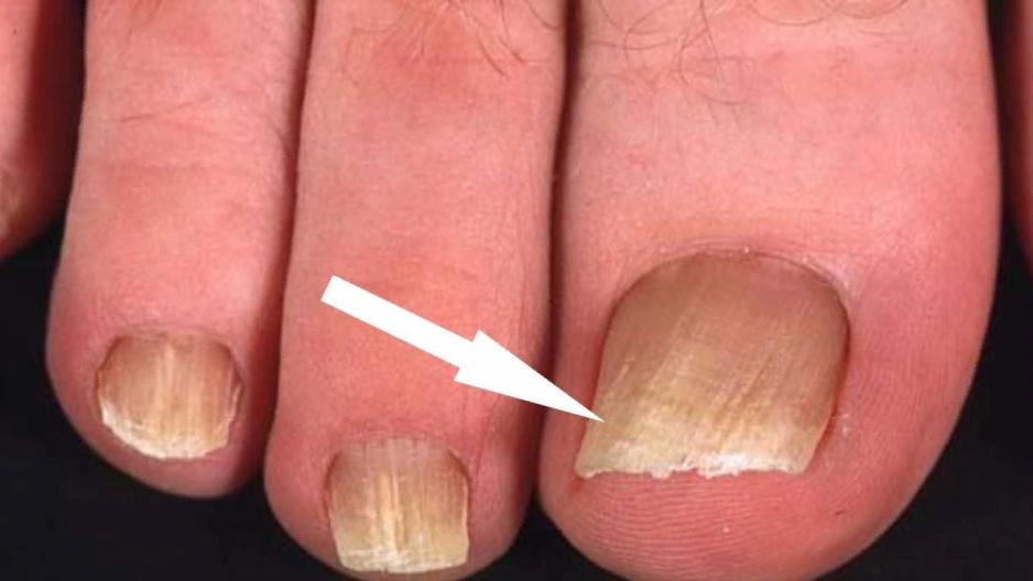 Заметив признаки грибка кожи или ногтя следует немедленно обратиться к специалисту также и потому, что грибок — это инфекция и она заразна.