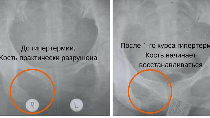 Динамика костных метастазов после одного курса гипертермии