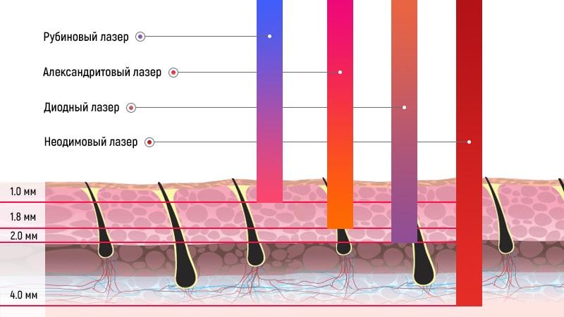 Сравнение действия лазеров