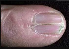 Советы для тех, у кого сильно слоятся ногти