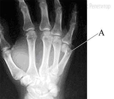 Как называют повреждение, обозначенное на рентгеновском снимке буквой ...?