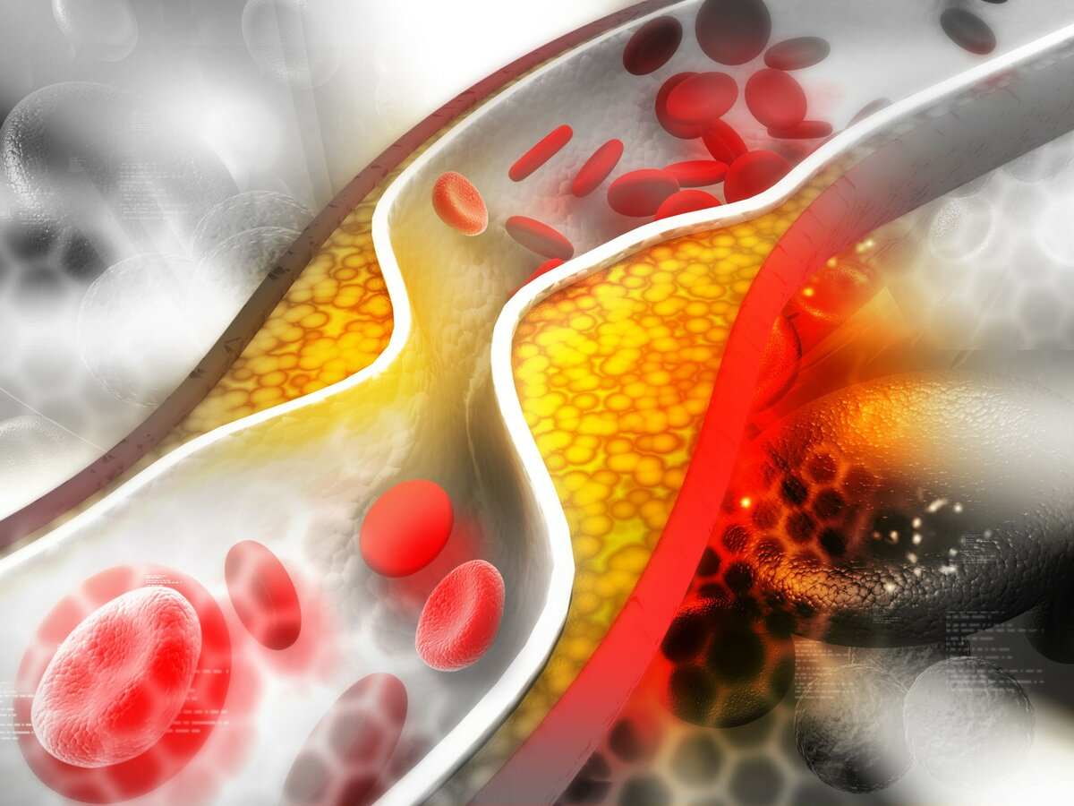 Blood Lipids such as cholesterol, triglycerides and lipoprotein(a)...